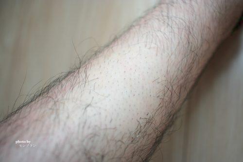 除毛クリームメルティヴィーナスでツルツルお肌になりました