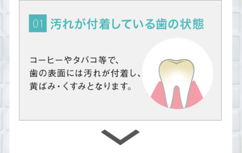 diemで歯が白くなるメカニズム